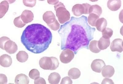 Случай гомеопатического лечения инфекционного мононуклеоза.